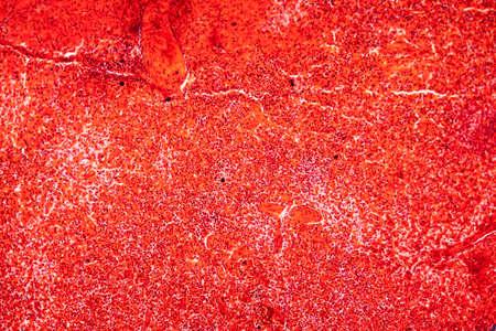 Spleen tissue under the microscope 100x