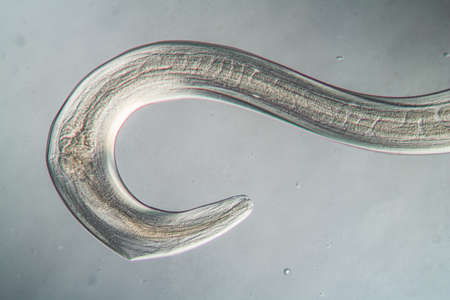 Nematode Parasitic worm under the microscope 100x