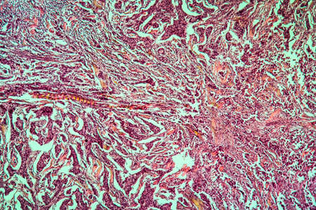 Breast cancer of the woman diseased tissue 100x Banque d'images