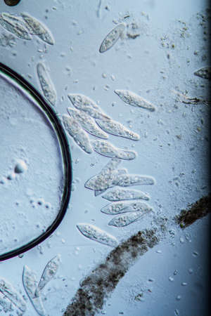 Ciliate plankton unicellular in drops of water 100x