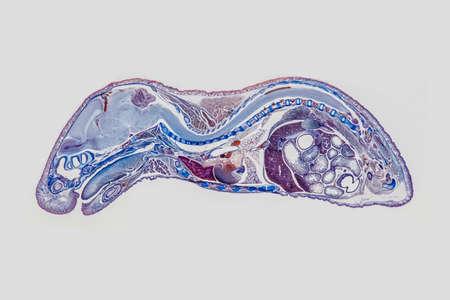 Longitudinal section of an mouse ebryo