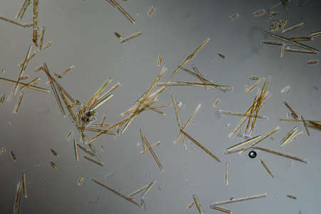 various diatoms from a river