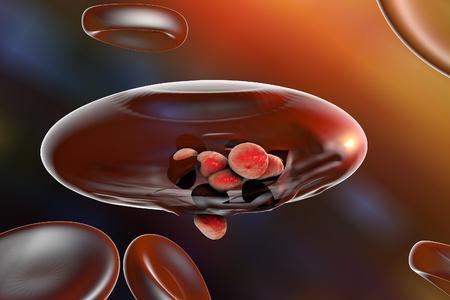 Malaria. Release of malaria parasites from red blood cell. Merozoites of Plasmodium falciparum, Plasmodium vivax, Plasmodium malariae or Plasmodium ovale