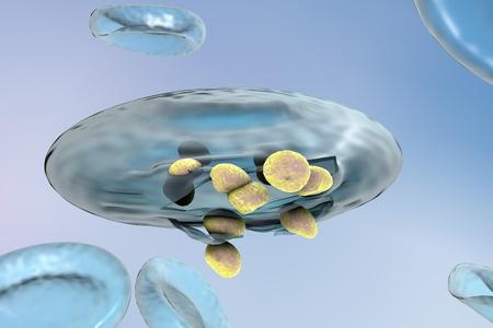 protozoan: Malaria. Release of malaria parasites from red blood cell. Merozoites of Plasmodium falciparum, Plasmodium vivax, Plasmodium malariae or Plasmodium ovale
