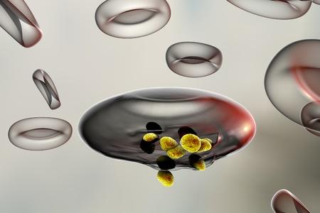 erythrocyte: Malaria. Release of malaria parasites from red blood cell. Merozoites of Plasmodium falciparum, Plasmodium vivax, Plasmodium malariae or Plasmodium ovale