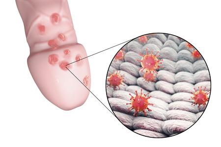 lesiones del herpes genital y vista de primer plano del virus del herpes simple que unen a las células humanas, ilustración 3D