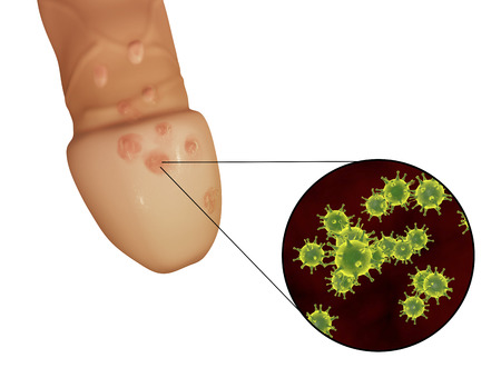 herpes simplex: Genital herpes lesions and close-up view of herpes simplex viruses attaching to human cells, 3D illustration