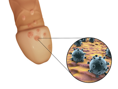 Genital herpes lesions and close-up view of herpes simplex viruses attaching to human cells, 3D illustration