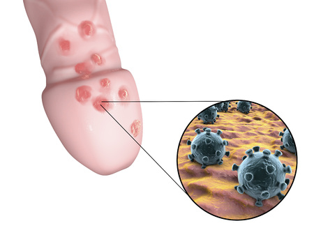 lesions: Genital herpes lesions and close-up view of herpes simplex viruses attaching to human cells, 3D illustration