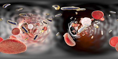 panorama view: 360-degree spherical panorama view inside blood vessel in patient with bacteriemia. 3D illustration