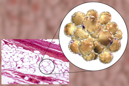 liposuction: White adipose tissue, light micrograph and 3D illustration, hematoxilin and eosin staining, magnification 100x. Fat cells (adipocytes) have large lipid droplet which remains unstained