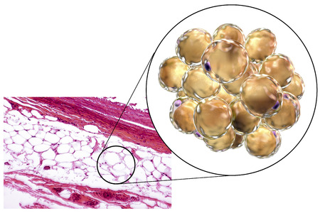 lipid: White adipose tissue, light micrograph and 3D illustration, hematoxilin and eosin staining, magnification 100x. Fat cells (adipocytes) have large lipid droplet which remains unstained