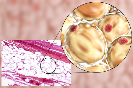 adipose tissue: White adipose tissue, light micrograph and 3D illustration, hematoxilin and eosin staining, magnification 100x. Fat cells (adipocytes) have large lipid droplet which remains unstained
