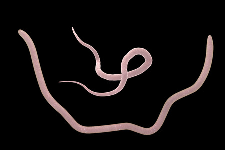 ascaris: Parasitic nematode worms roundworms Ascaris lumbricoides, male up and female down which inhabit human intestine and cause disease ascariasis, isolated on black background, 3D illustration Stock Photo