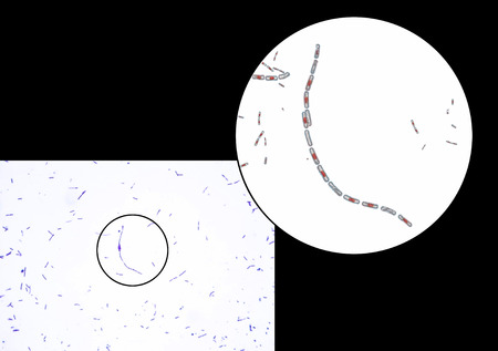 Bacillus anthracis light micrograph and 3d illustration gram bacillus anthracis light micrograph and 3d illustration gram positive spore forming bacteria which ccuart Images