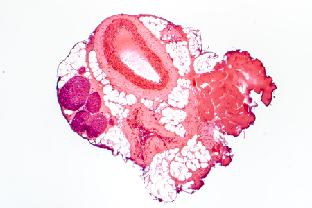 histological: Light micrograph of a muscular artery, vein and nerves. Artery has thicker wall than vein. Light microscopy, hematoxylin and eosin stain, magnification 40x