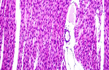 músculo del corazón, micrografía de luz. Músculo estriado cardiaco células miocitos y capilar en el interior del músculo cardíaco. La microscopía óptica, hematoxilina y eosina, aumento de 40x