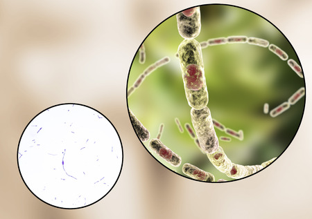spore: Bacillus anthracis, light micrograph and 3D illustration, gram-positive spore forming bacteria which cause anthrax and are used as biological weapon Stock Photo