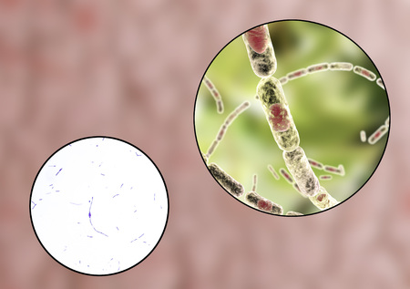 bacillus: Bacillus anthracis, light micrograph and 3D illustration, gram-positive spore forming bacteria which cause anthrax and are used as biological weapon Stock Photo