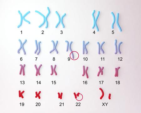 Philadelphia chromosoom karyotype man of vrouw. 3D illustratie toont defect 9 en 22 chromosomen met translocational defect waardoor oorzaak chronische myeloïde leukemie Stockfoto