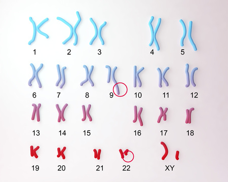 Philadelphia chromosome karyotype male or female. 3D illustration showing defective 9 and 22 chromosomes with translocational defect which causes cause chronic myelogenous leukaemia