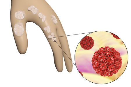 Hand with warts and close-up view of papillomavirus which causes development of warts, 3D illustration