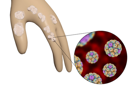 warts: Hand with warts and close-up view of papillomavirus which causes development of warts, 3D illustration