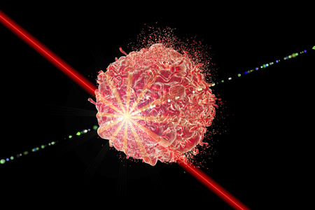 conceptual image: Laser therapy of cancer, conceptual image. 3D illustration