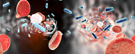 vibrio: 360-degree panorama view inside blood vessel in patient with bacteriemia. 3D illustration