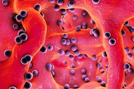 pus: batteri sferici all'interno di tessuto osseo. Osteomielite, illustrazione 3D