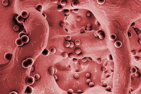 pus: Spherical bacteria inside bone tissue. Osteomyelitis, 3D illustration Archivio Fotografico