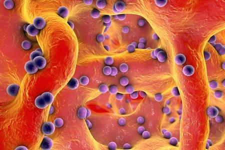 Spherical bacteria inside bone tissue. Osteomyelitis, 3D illustration Stock Photo