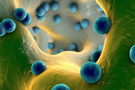 medical fight: Spherical bacteria inside bone tissue. Osteomyelitis, 3D illustration Stock Photo