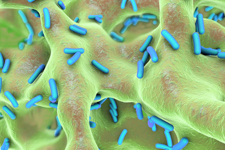 Rod-shaped bacteria inside bone tissue. Osteomyelitis, 3D illustration Stock Photo