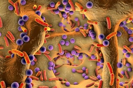 pus: Sferici e forma batteri all'interno del tessuto osseo, sulla superficie della pelle o le mucose. Osteomielite, illustrazione 3D Archivio Fotografico