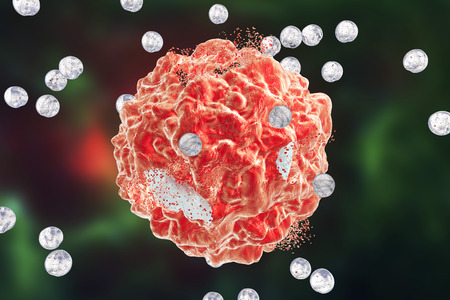 apoptosis: Destruction of a tumor cell by nanoparticles. 3D illustration. Can be used also to illustrate effect of drugs, medicines, microbes