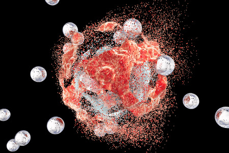 Destruction of a tumor cell by nanoparticles. 3D illustration. Can be used also to illustrate effect of drugs, medicines, microbes