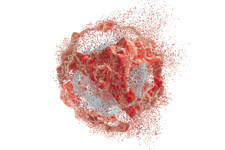 Destruction of a tumor cell. 3D illustration. Series of images showing different stages of destruction of a tumor cell. Can be used to illustrate effect of drugs, medicines, microbes, nanoparticles