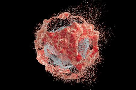 종양 세포의 파괴. 3D 그림입니다. 종양 세포의 파괴의 다른 단계를 보여주는 이미지의 시리즈. 약물, 의약품, 미생물, 나노 입자의 효과를 설명하는 데