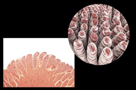 small intestine: Villi of small intestine, light micrograph and 3D illustration