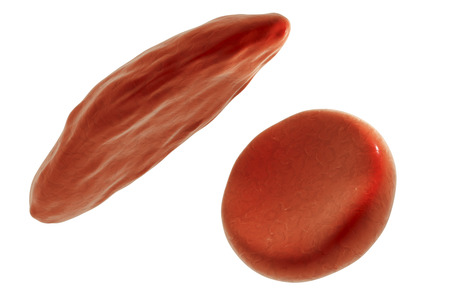 mutation: Sickle cell and normal red blood cells, 3D illustration