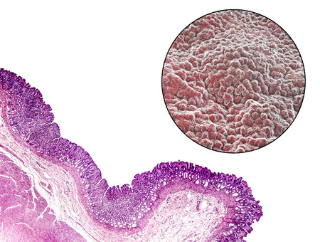 Pyloric mucosa, light micrograph and 3D illustration which show deep gastric pits reaching half of mucosa depth