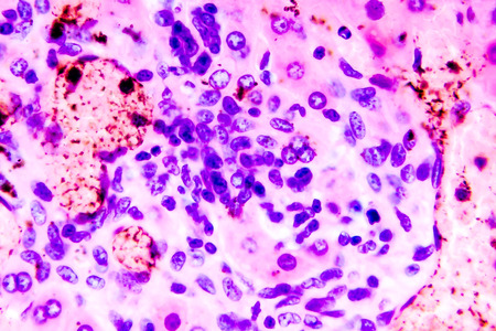 Coccidiosis, coccidia in liver, light micrograph. Micrograph shows bile duct hyperplasia and fibrosis with periductal inflammation, groups of coccidia, large violet cells Stock Photo