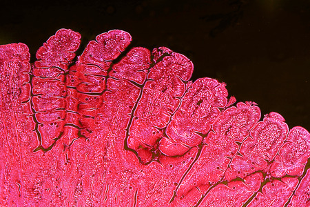 Villi of small intestine, light micrograph with enhanced colors to visualize inner structures, magnification 100x