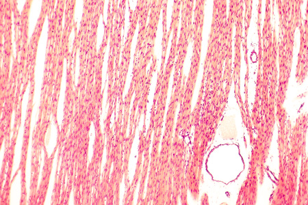 striated: Heart muscle, light micrograph. Striated cardiac muscle cells myocytes. Light microscopy, hematoxilin and eosin stain, magnification 100x Stock Photo