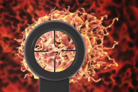 melanoma: Cancer treatment concept. 3D illustration showing optical sight directed on cancer cell