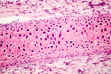 histological: Compact bone micrograph. Light microscopy of a bone tissue, hematoxylin and eosin staining, magnification 200x. Science research micrograph
