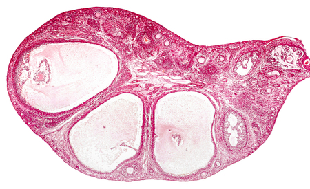 microscopical: Light micrograph of ovary showing primordial, primary and secondary follicles. Light microscopy, hematoxylin and eosin stain, magnification 200x. Colors are enhanced for better visualisation