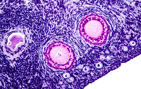 visualisation: Ovarian follicles. Light microscopy, hematoxylin and eosin stain, magnification 200x. Colors are enhanced for better visualisation