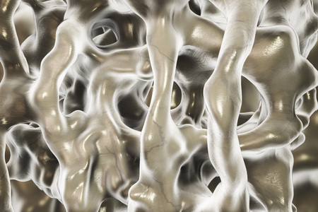brittle: Normal bone tissue, close-up view showing bone trabeculae. 3D illustration Stock Photo